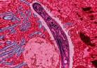 Malaria_plasmodium_wiki-560X380