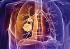 Lung_Cancer_Brochure_Sept_2016_original